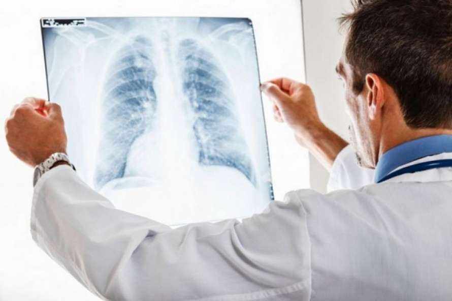 Жители Киева массово болеют пневмонией